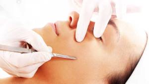 what-is-dermaplaning