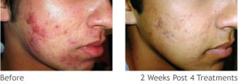 emax_acne